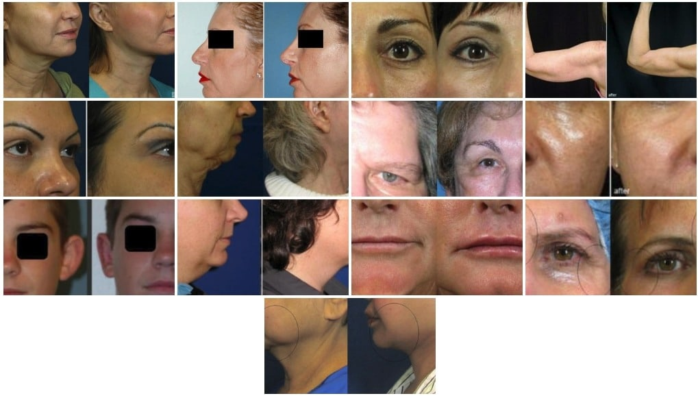 Before and after photos Superplastic Surgeons